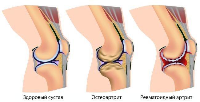 Лечение в Соль Илецк